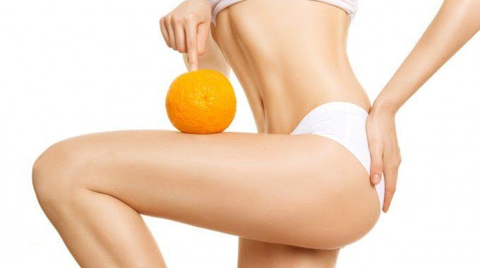 Qu'est-ce que la cellulite ?